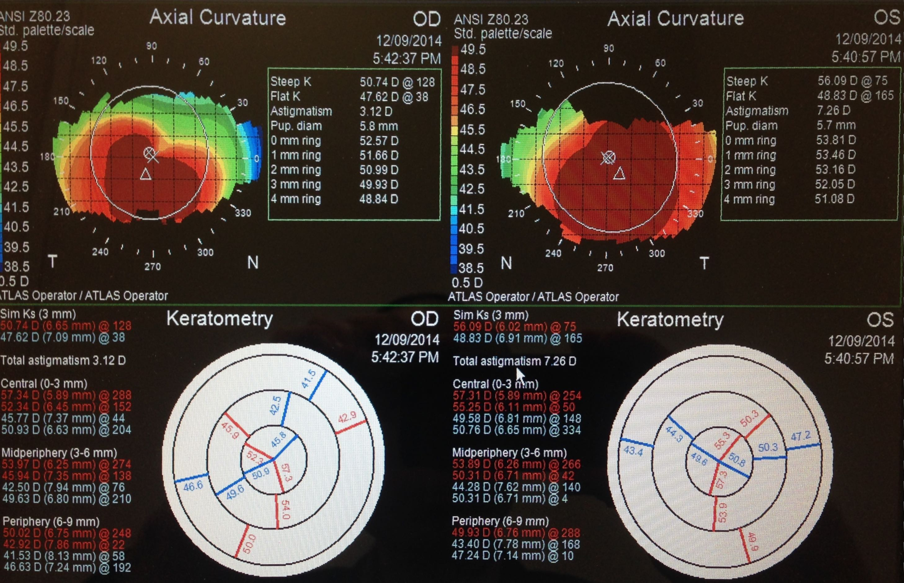 keratoconus atlast