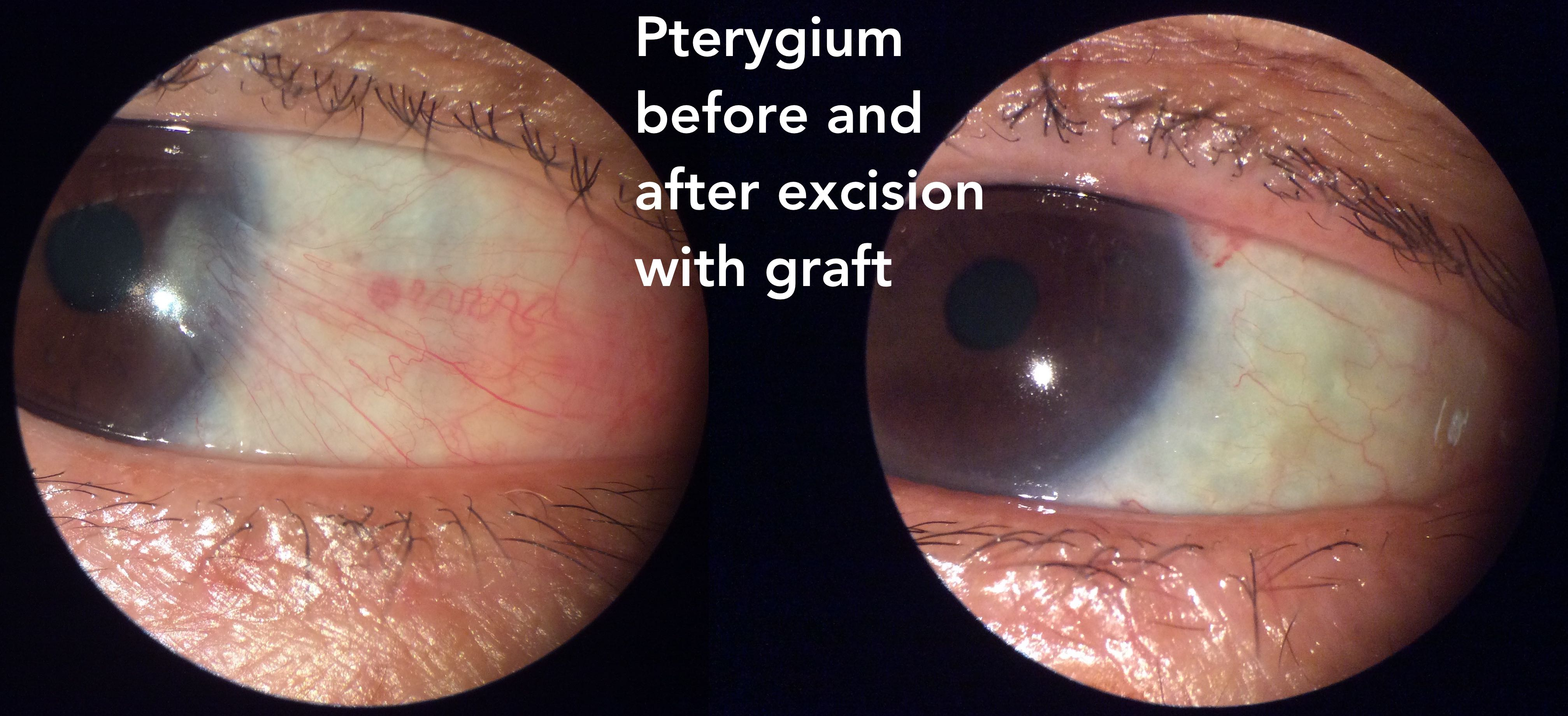 pterygium before after 2